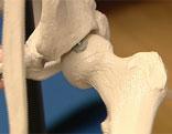 Hüftgelenk Skelett Knochen