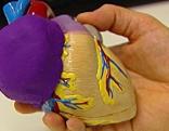 Herz mit Tumor