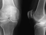 Röntgenbild eines Knies