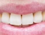 Mund mit Zähnen