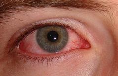 Bindehautentzündung Auge Augenkrankheit Allergie Rötung Gesundheit