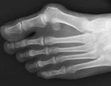 Röntgenbild eines Halux