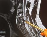 Röntgenbild einer Halswirbelsäule