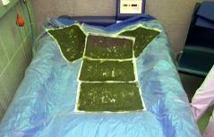 Moorpackungen auf einem Therapiebett