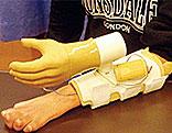 Handprotese