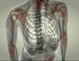 Rheumabild Brustkorb