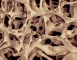 Osteoporose Bild