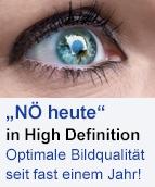 HD AUGE
