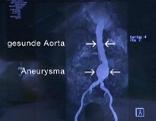 Aortenaneurysma