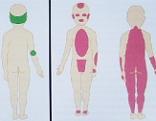 Kindesmisshandlung Misshandlung Schüttelsyndrom Hämatome Kinderklinik Kinder