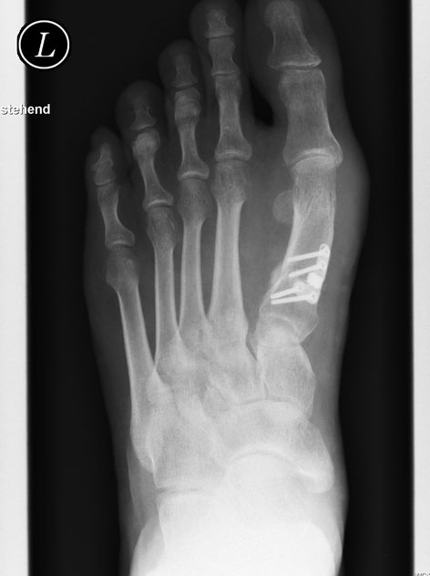 Röntgenbild Ballenfuß