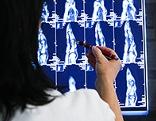 Ärztin kontrolliert Röntgenbilder