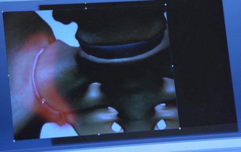 Röntgenbild Kreuz-Darmbeingelenk
