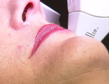 Laser gegen Haare Damenbart Laserambulanz