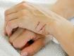 Hände mit Narben