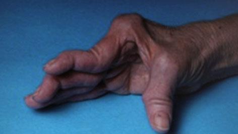 Rheuma-Hand