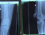 Röngtenbild Fuß Röntgen