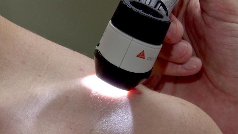 Hautkrebs Melanom Untersuchung Hautarzt