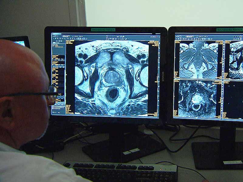 Prostata Krebs Untersuchung Proben Krankenhaus LKH Arzt