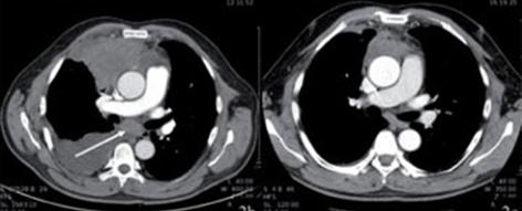 Krebsbilder Lungenkrebs