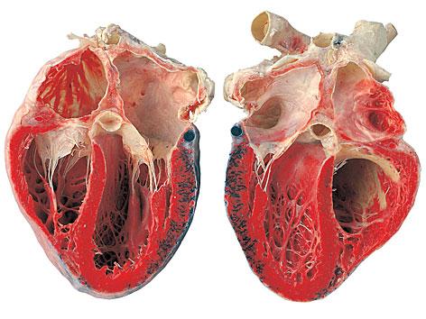 Ein plastiniertes Herz, aufgeschnitten in zwei Hälften