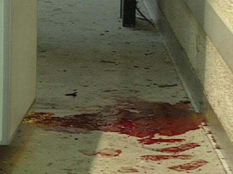 Blut nach Rohrbombenexplosion