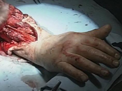 OP Handtransplantation