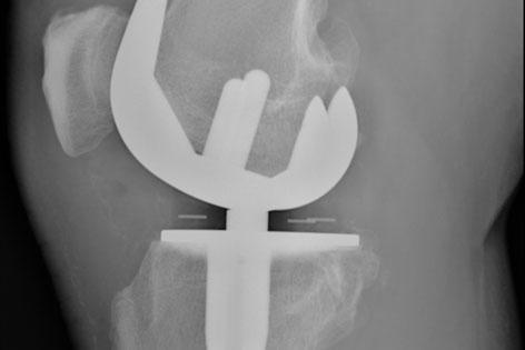Röntgenbild von einem künstlichen Kniegelenk