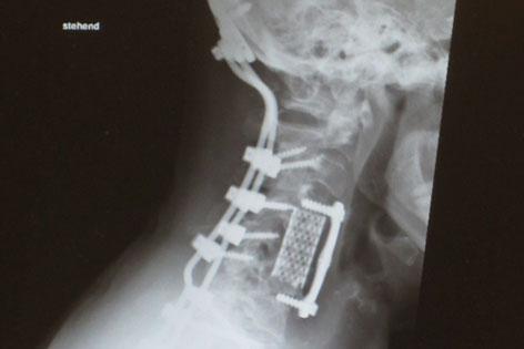 Röntgenbild einer Halswirbelsäule durch Schrauben fixiert