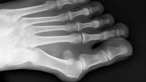Röntgenbild mit Hallux valgus.