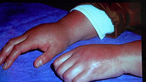 Morbus Sudeck - geschwollenes Handgelenk