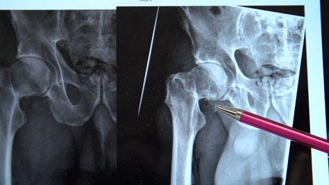 Röntgenbild Oberschenkelhals