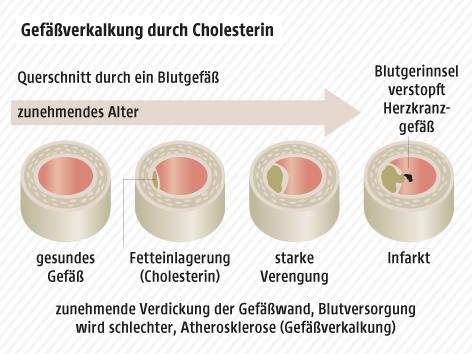 Grafik zur Arterienverkalkung