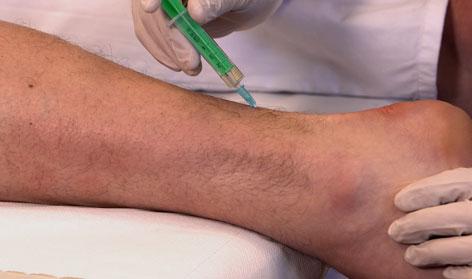 Behandlung bei Achillodynie