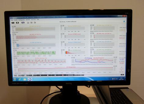 Bildschirm mit Daten des Patienten
