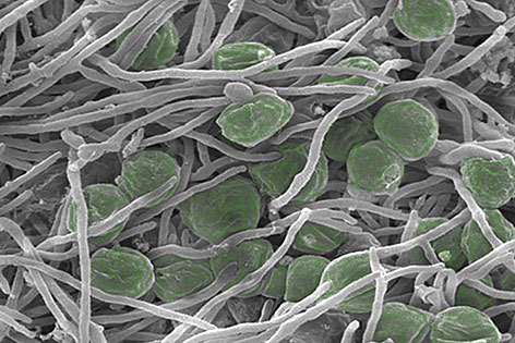 Flechten unter dem Mikroskop