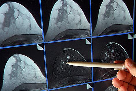 Bildschirmdarstellung einer Magnetresonanz Mammographie
