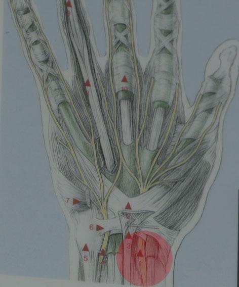 Zeichnung Quervain-Krankheit