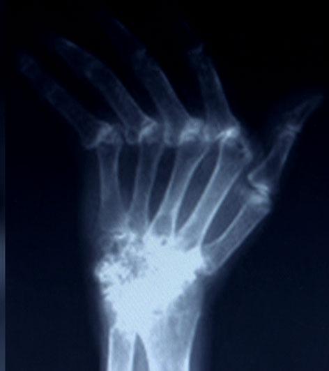 Rheuma-Röntgenbild