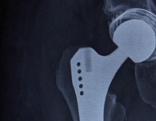 Röntgenbild Hüftprothese