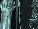 Knochenbruch Röntgen