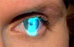 Auge Augenuntersuchung Augenarzt