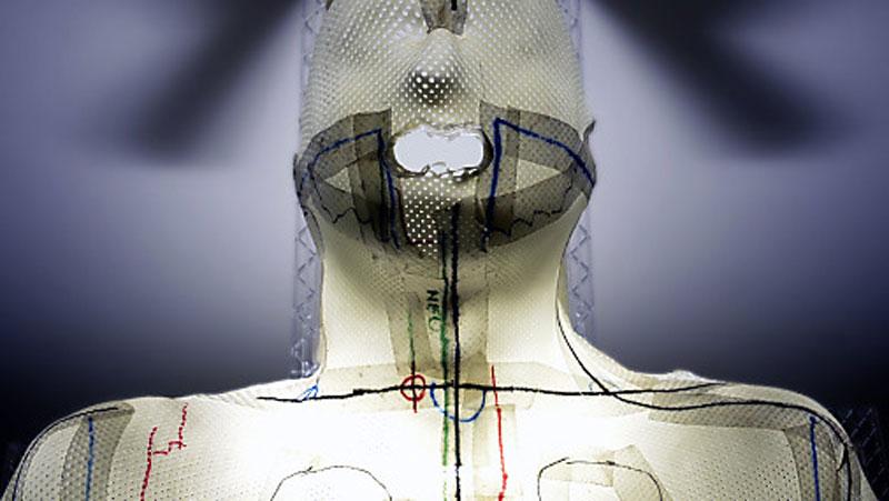 Schutzmaske für Betrahlung von Tumoren bei HNO