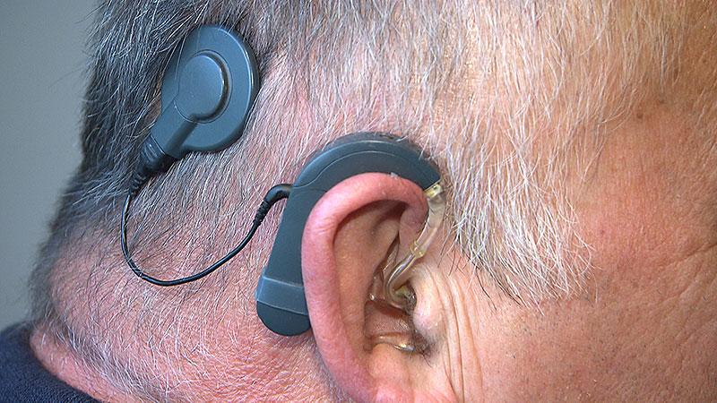 Tag des Hörens Hörimplantat