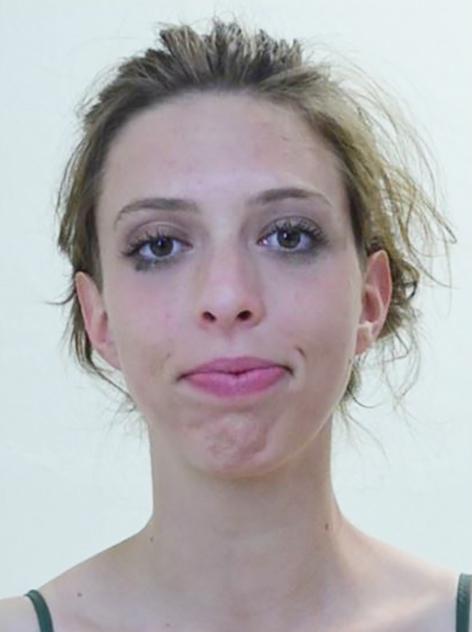 Vermisste 24-Jährige aus Igls