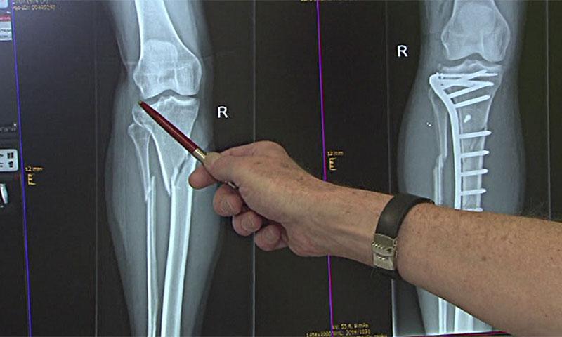 Röntgenbild Knochenbruch